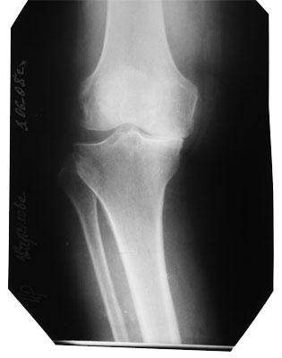 Deforming arthrosis