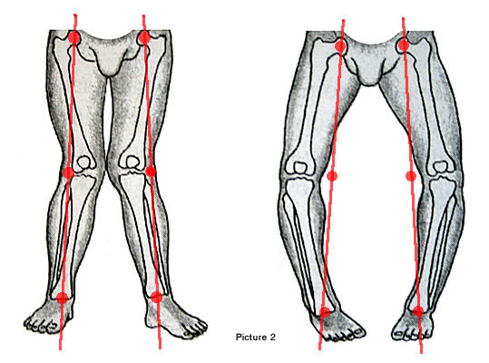 Why bow legs and knock knee leads to arthritis? Basics in simple words