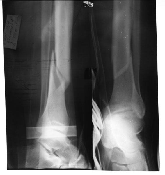 Orthopaedy Patient 5 Spiral Fracture Of Lower Third Of Shin Bone