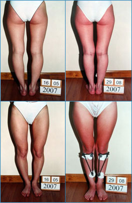 Bow legs correction - Patient 10