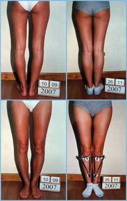 Bow legs correction - Patient 13
