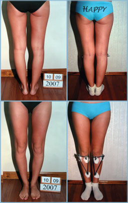 Genu varum - bow legs correction treatment - patient picture