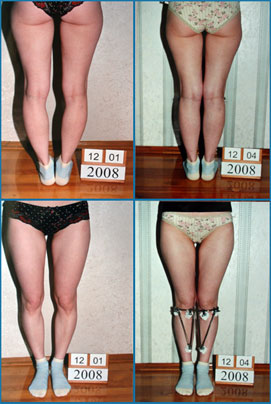 Bow legs correction - Patient 15
