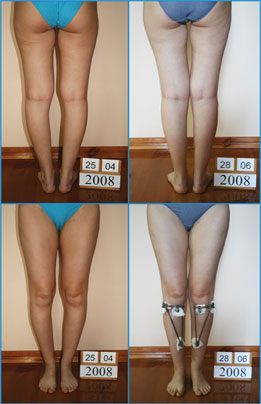 Bow legs correction - Patient 16
