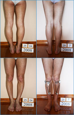 Bow legs correction - Patient 17