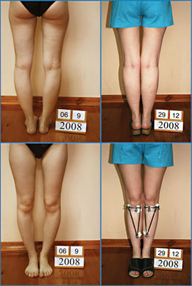Bow legs correction - Patient 18