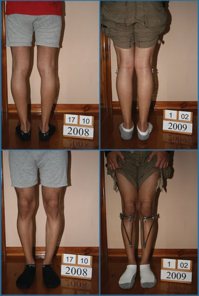 Bow legs correction - Patient 19