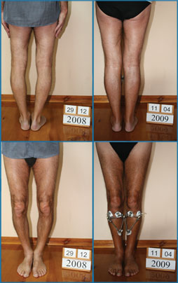 Bow legs correction - Patient 20