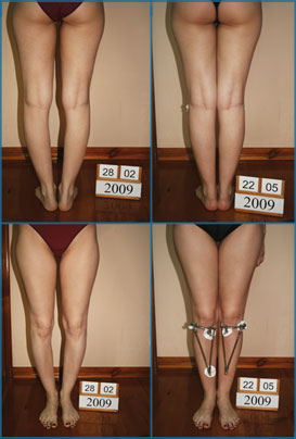 Bow legs correction - Patient 21