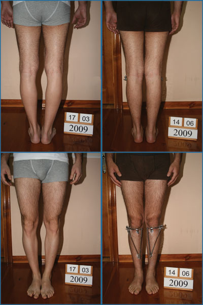 Bowlegs correction - Patient 22