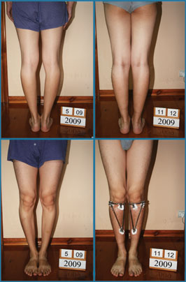 Bow legs correction - Patient 22