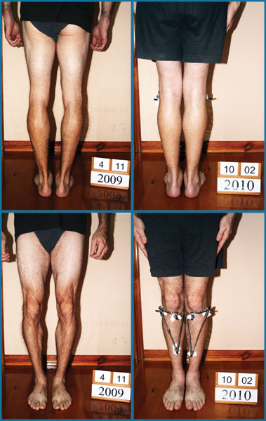 Bow legs correction treatment - Patient 24
