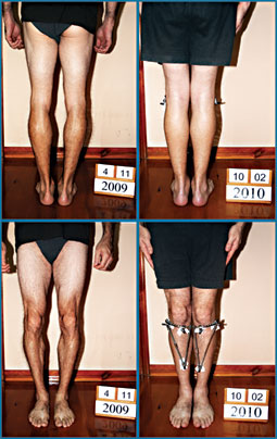 Bow legs correction - Patient 24