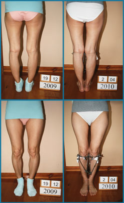 Bow legs correction - Patient 25