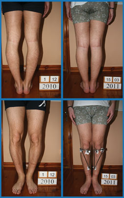 Bow legs correction - Patient 27