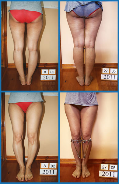 Bow legs correction treatment - Patient 28