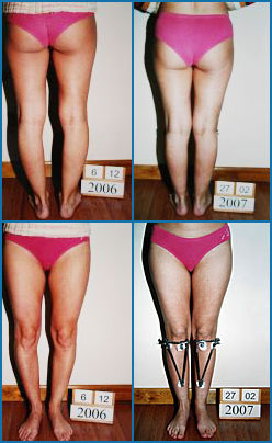 Bow legs correction - Patient 3