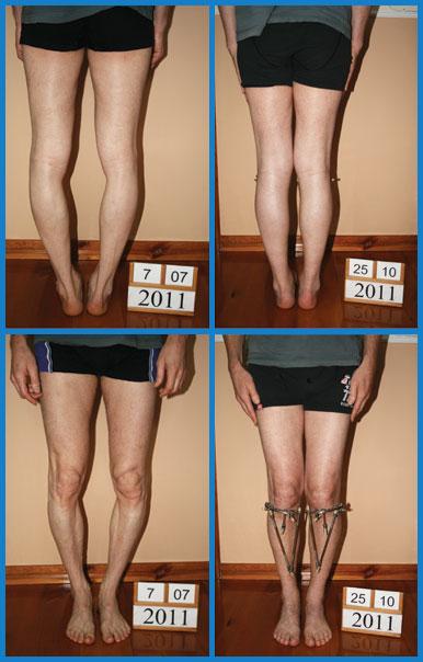 Bow legs (genu varum) correction treatment - Patient 30