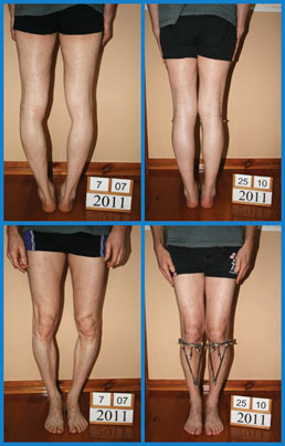 Bow legs (genu varum) correction - Patient 30
