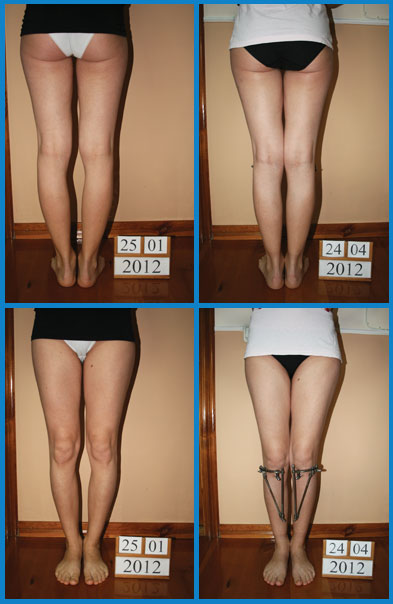 Bow legs (genu varum) correction treatment - Patient 32