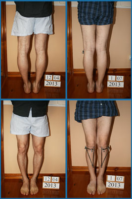 Bow legs (genu varum) correction - Patient 35