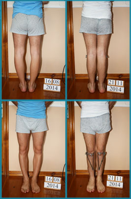 Bow legs (genu varum) correction treatment | Patient 39