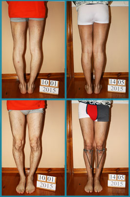 Bow legs (genu varum) correction treatment | Patient 41