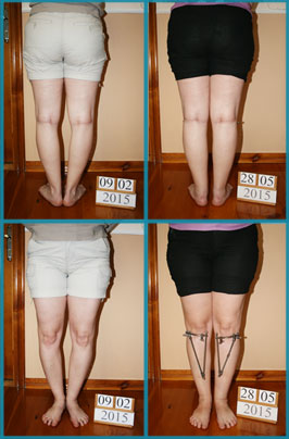 Bow legs (genu varum) correction treatment | Patient 42