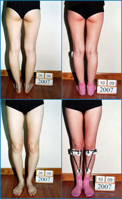 Bow legs correction - Patient 7