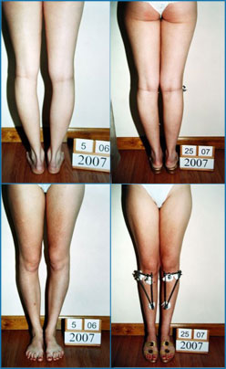 Bow legs correction - Patient 8