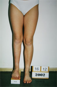 Leg Length Discrepancy between right and left legs 